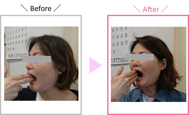 M.Sさんの顎の開き具合の変化を示している画像
