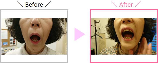 S.Sさんの顎の開き具合の変化を示している画像
