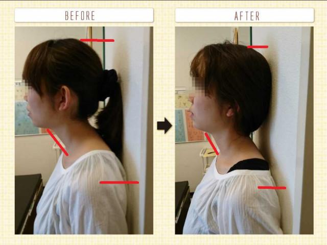 頭部の歪み改善の一例を示した写真