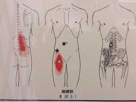 腸腰筋のトリガーポイントを示す画像(トリガーポイント疼痛パターンより)