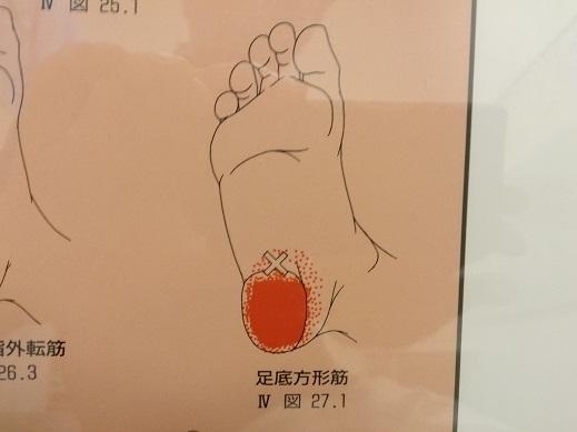 足底方形筋