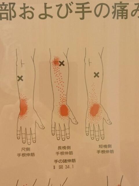 手首の伸筋群