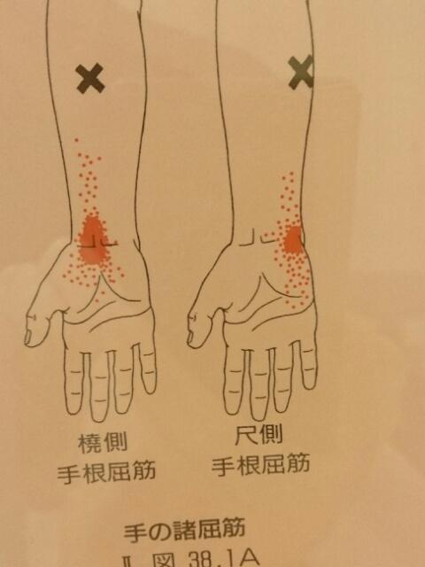 手首の屈筋群